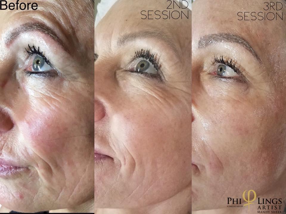Fine Lines & Wrinkles - Skin / MicroNeedling using PhiTango gel & Skin CandyPlasma Pen next to zap the final stubborn deep wrinkles.