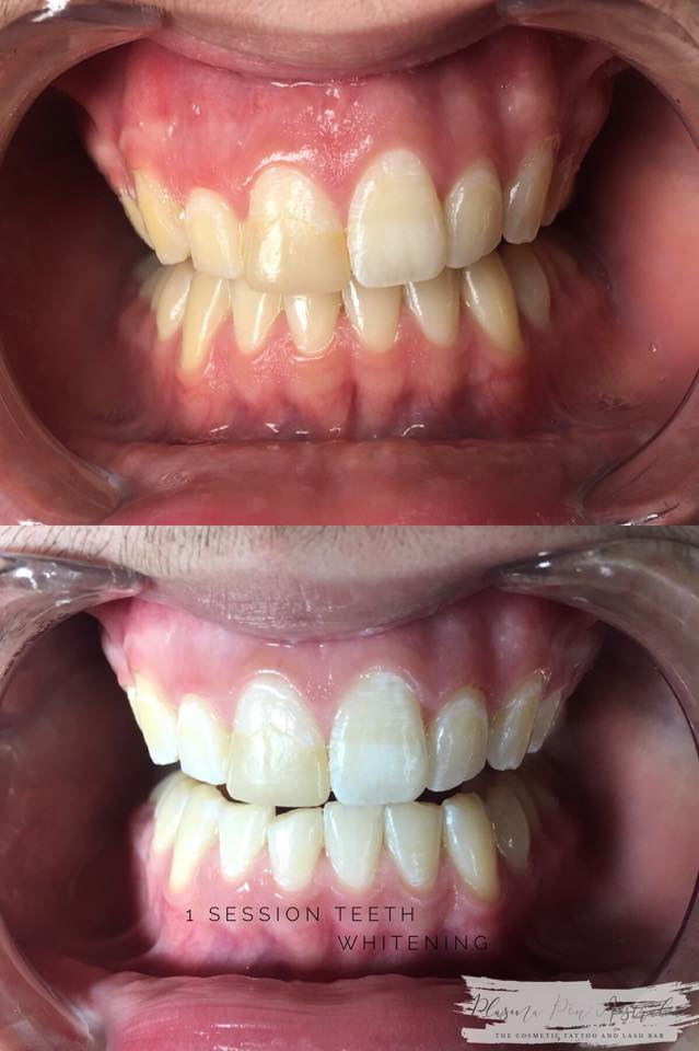 1 session of Teeth Whitening