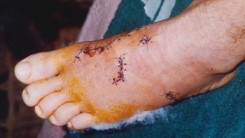 Croc foot.jpg