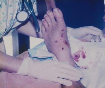 Croc foot and nurse.jpg