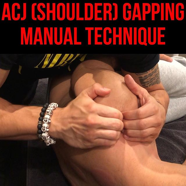 Pain at Top (Superior) of Shoulder during Overhead Lifts❗️ • • • Ok this manual technique right here is ABSOLUTE GOLD my friends. If you have anyone with restrictions in overhead mobility and/or pain at top of shoulder during their lifts, you NEED to do this technique. The ACJ is one of those forgotten joints, yet is so damn crucial for proper and efficient overhead lifts. Secondary to its numerous muscular and ligamentous attachments, it becomes compressed and severely limited in its joint play. Find out what direction the joint is restricted. Free that restriction. Train that position. And watch the MAGIC happen❗️ • • • Video 1: Pre-Test with Shoulder Overhead Abduction  Video 2: Assessment of ACJ joint play  Video 3: Performance of ACJ Gapping Mobilization at distal clavicle  Video 4: Performance of ACJ Gapping Mobilization at distal scapula  Video 5: Performance of ACJ Gapping Mobilization  Video 6: Neuromuscular Re-Education of Posterior Depression of Scapula Video 7: (continued) Neuromuscular Re-Education of Posterior Depression of Scapula Video 8: Post-Test with Shoulder Overhead Abduction