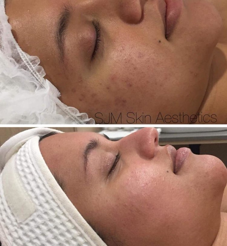 Treatments: 5x  Nutrition Facial  + LED add on,  1 x  Enzyme Peel  +  LED add on , 4x  CIT Needling .  Homecare: Lotion N, Deco Foundation.