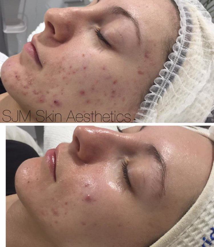 Treatments:5x  LED  single sessions, 7x  Enzyme Peel  +  LED add on , 1x  CIT Skin Needling   Homecare: Cleansing Milk with DMS, Lotion P, Lotion N, Custom Blend High Classic Moisturiser, Deco Foundation.