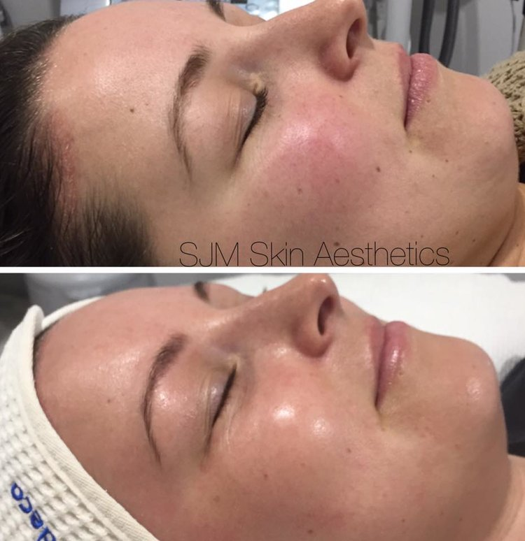 Treatments: 4x  Nutrition Facial  + LED, 2x  full face IPL .  Homecare: Cleansing Milk with DMS, Lotion N, Custom Blend Serum, Liposome Concentrate Plus Serum, DMS Base Cream High Classic moisturiser, SPF 30+, Deco Foundation.
