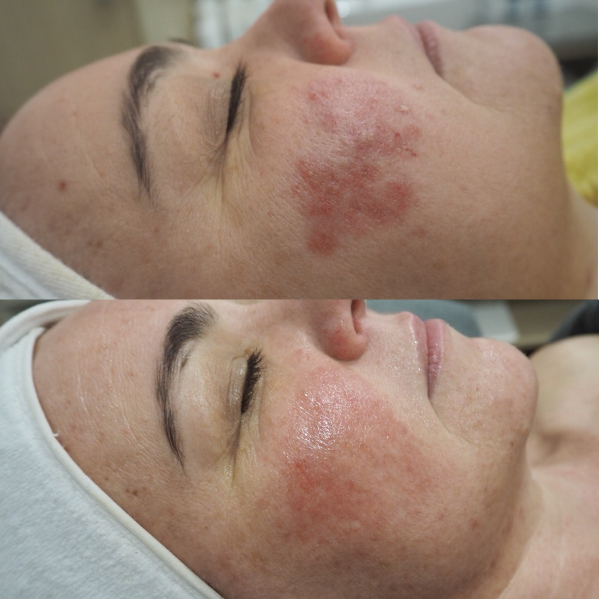 Results for one of our clients suffering from Rosacea, after 6x LED Single Sessions + 5x Level 2 Enzyme Peels with add on LED.