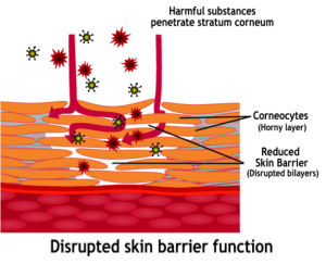 disrupted-skin-barrier-function-300x243.png