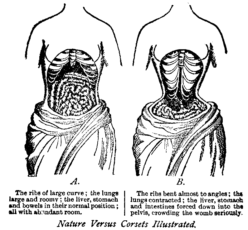 People still like to use this photo to scare people about corsets! This was created before MRI or Xray technology was invented. It was literally made up, and people still reference it! Silly humans!