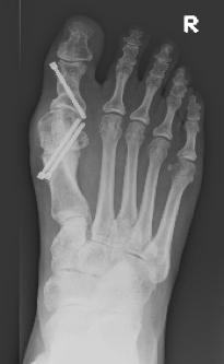 Post-operative bunion X-Ray