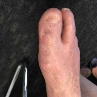 Diabetic Foot Ulcer Post-Op