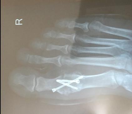 m1p1 arthroscopic fusion