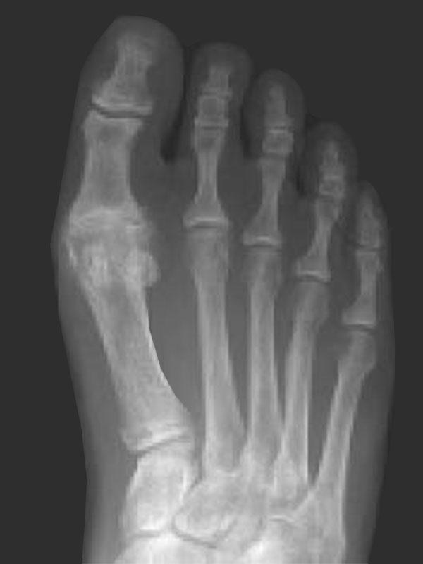 hallux-rigidus-big-toe-arthritis-2.jpg