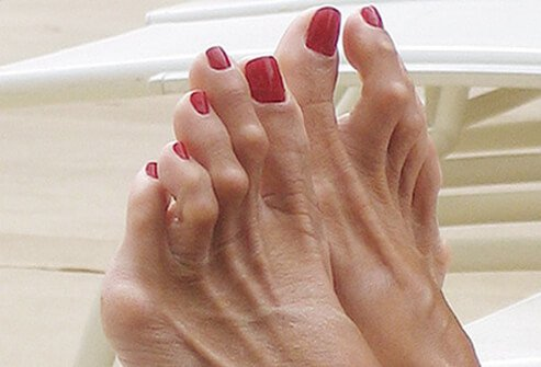 diabetes_foot_problems_s13_hammertoes.jpg