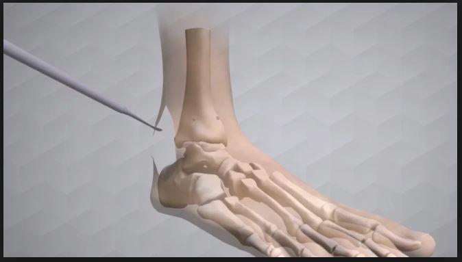 Augment Bone Graft Surgical Technique.JPG
