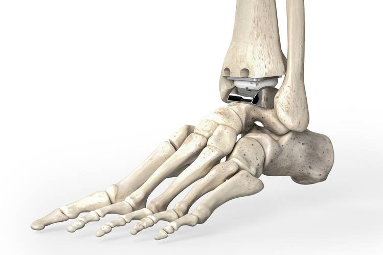 Wallstreet - Ankle Replacement.jpg