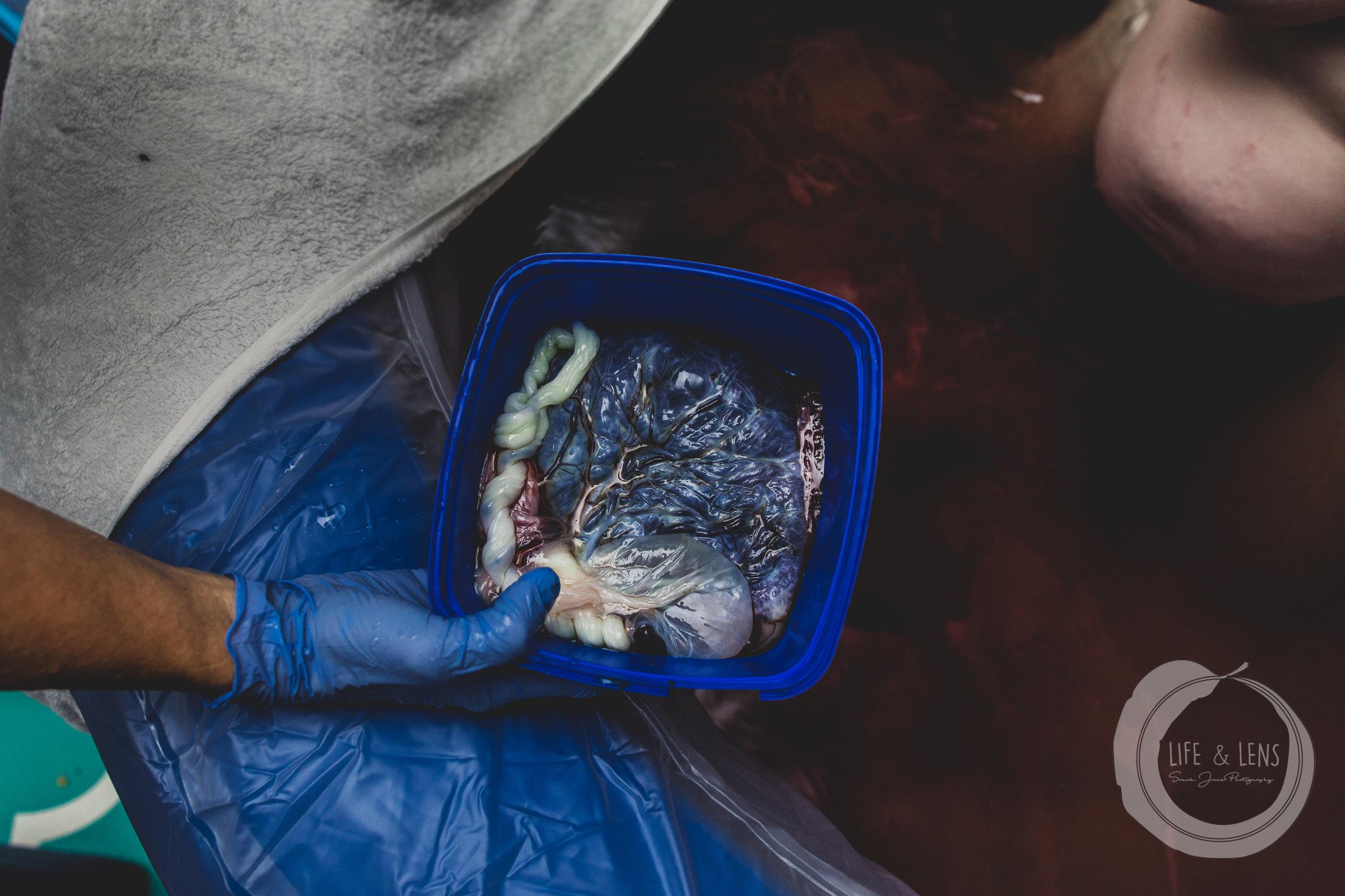 sydney birth photographer placenta from homebirth