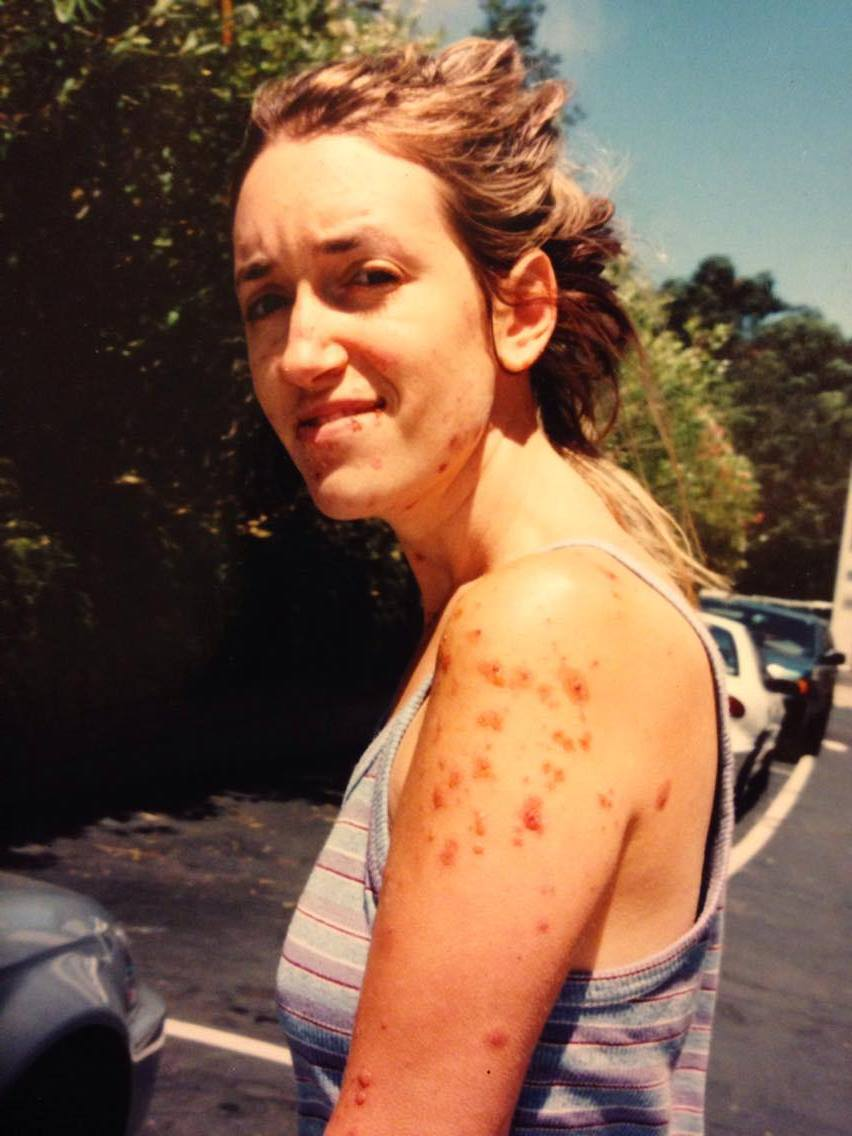 July 2000 after my rash had significantly improved.