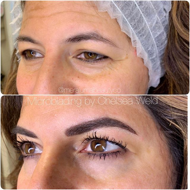 Making good brows great! 😍 Before and after microblading by our @chelseaweld_meraluma. We get asked all the time if microblading is for people with eyebrow hair. The answer is YAASSS! 🙌🏼 . This lovely lady already had great eyebrows. With microblading we were able to thicken them up, give her a new and more flattering arch and extend the length! All while keeping them natural looking. . . For all inquiries about microblading please visit our website at www.meraluma.com or email us at bookings@meraluma.com for inquiries!
