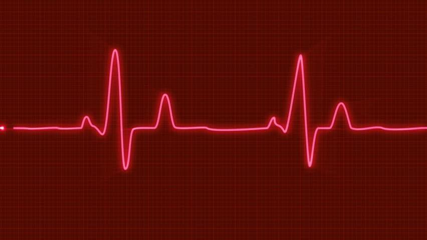 heart+beat.jpg