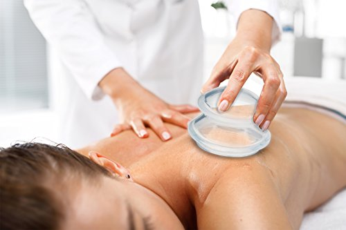 Silicone Cupping