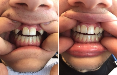 This young man was congenitally missing his laterals. Dr. Bogden made him Maryland Bridges to replace the missing teeth and now he has something to smile about.