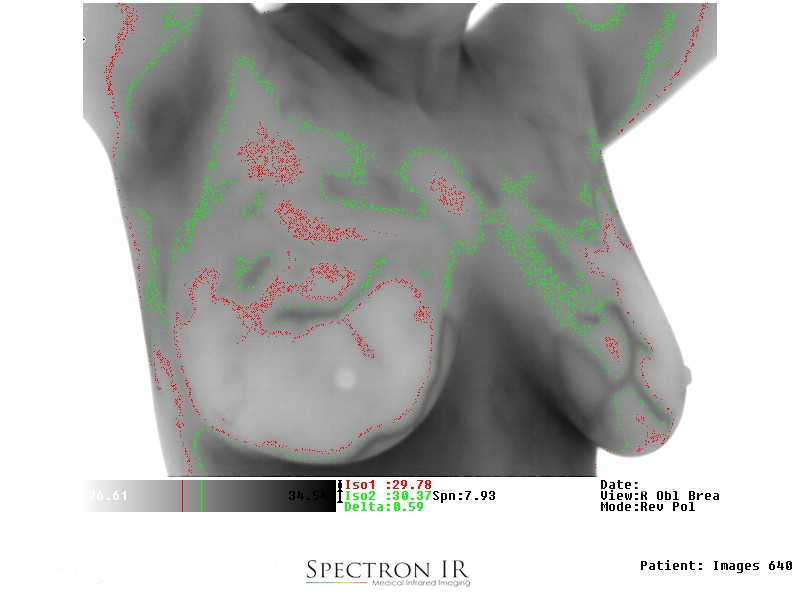 Thermal Image of Isotherm Breast.jpg