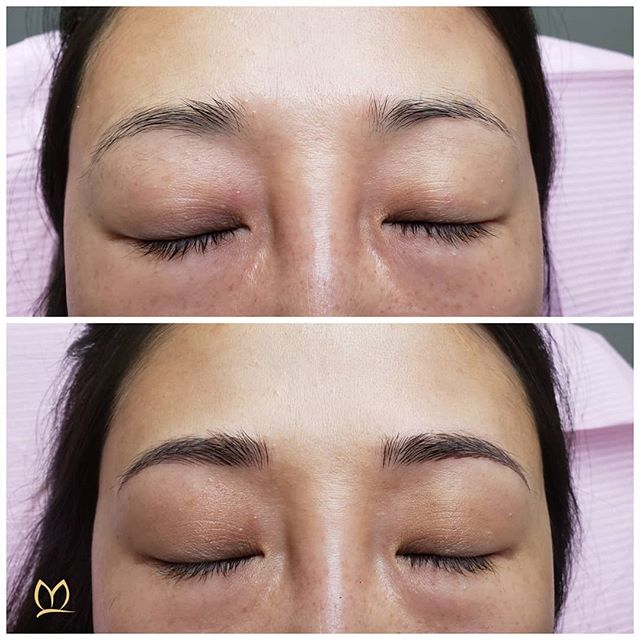 Another brow transformation via microblading for this lovely lady! This gives her a more polished yet natural look. 🦋  ___________________________________ #microbladingpnw  #microblading #combobrows #pmu #smpu #microbladingportland #microbladingvancouver #microbladedbrows #eyebrowmicroblading #micropigmentation #permanentmakeup #semipermanentmakeup #cosmetictattoo #browtattoo #tattoo #lipblush #liptattoo #lashlineenhancement #eyelashenhancement #lashenhancement