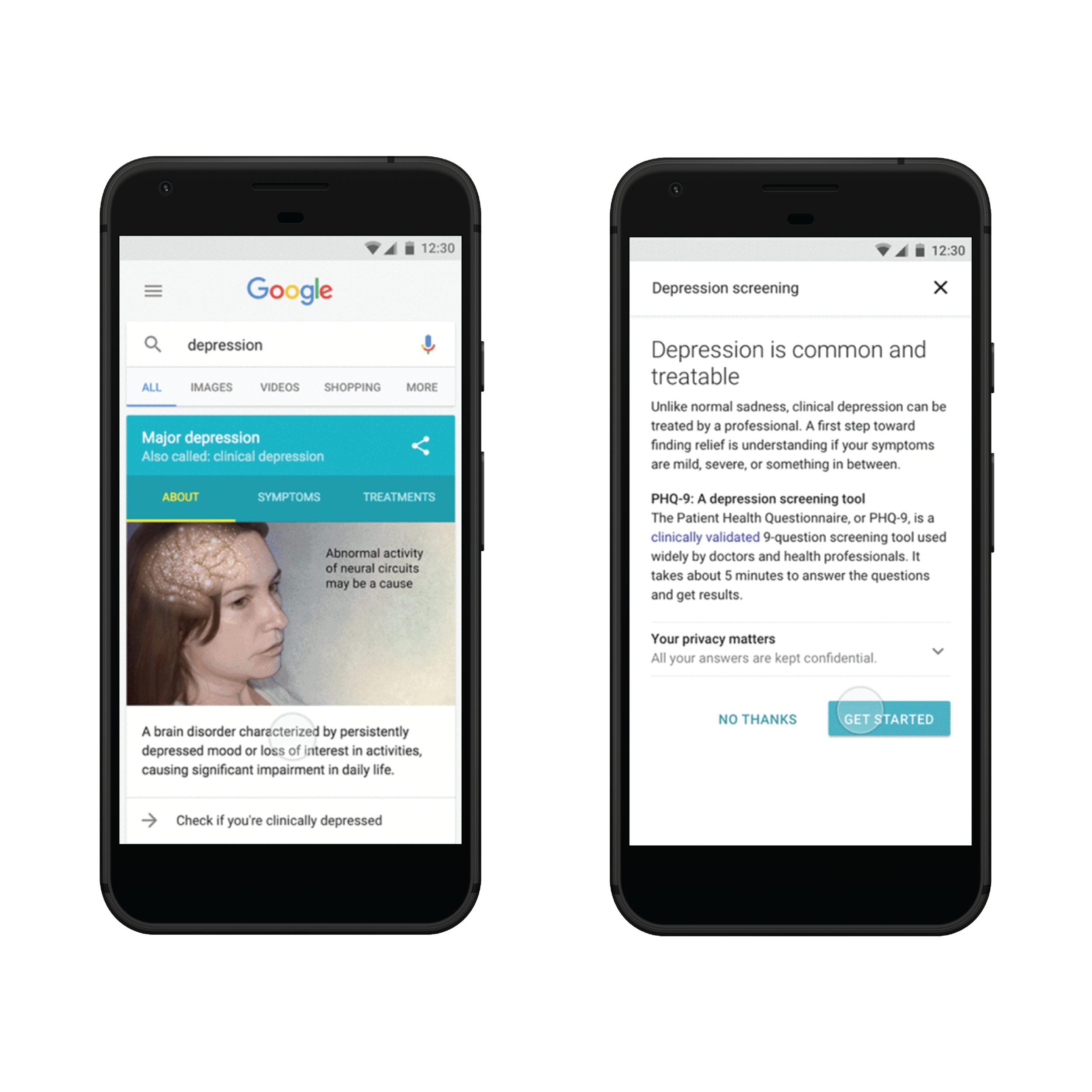 Screenshots from Google's current Health Card for major depression. Currently, postpartum depression does not have it's own dedicated knowledge graph.