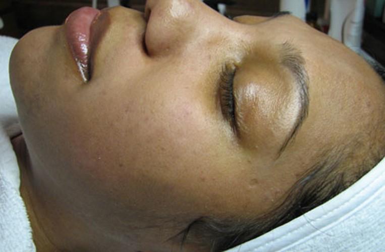Acne Clinic 2