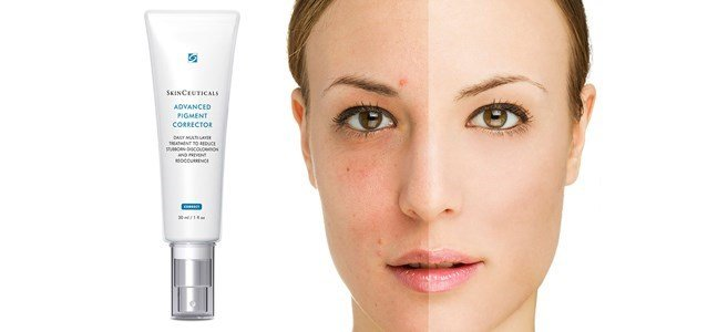 skinceuticals-advanced-pigment-corrector-sld-2237.jpg