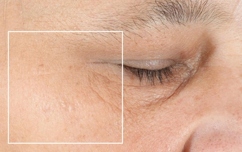 Crows feet after.jpg