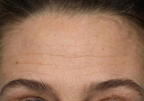 forehead before.jpg