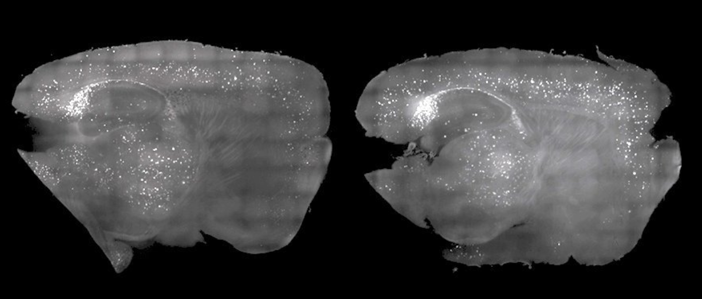 Scientists 'clear' Alzheimer's plaque from mice using only light and sound