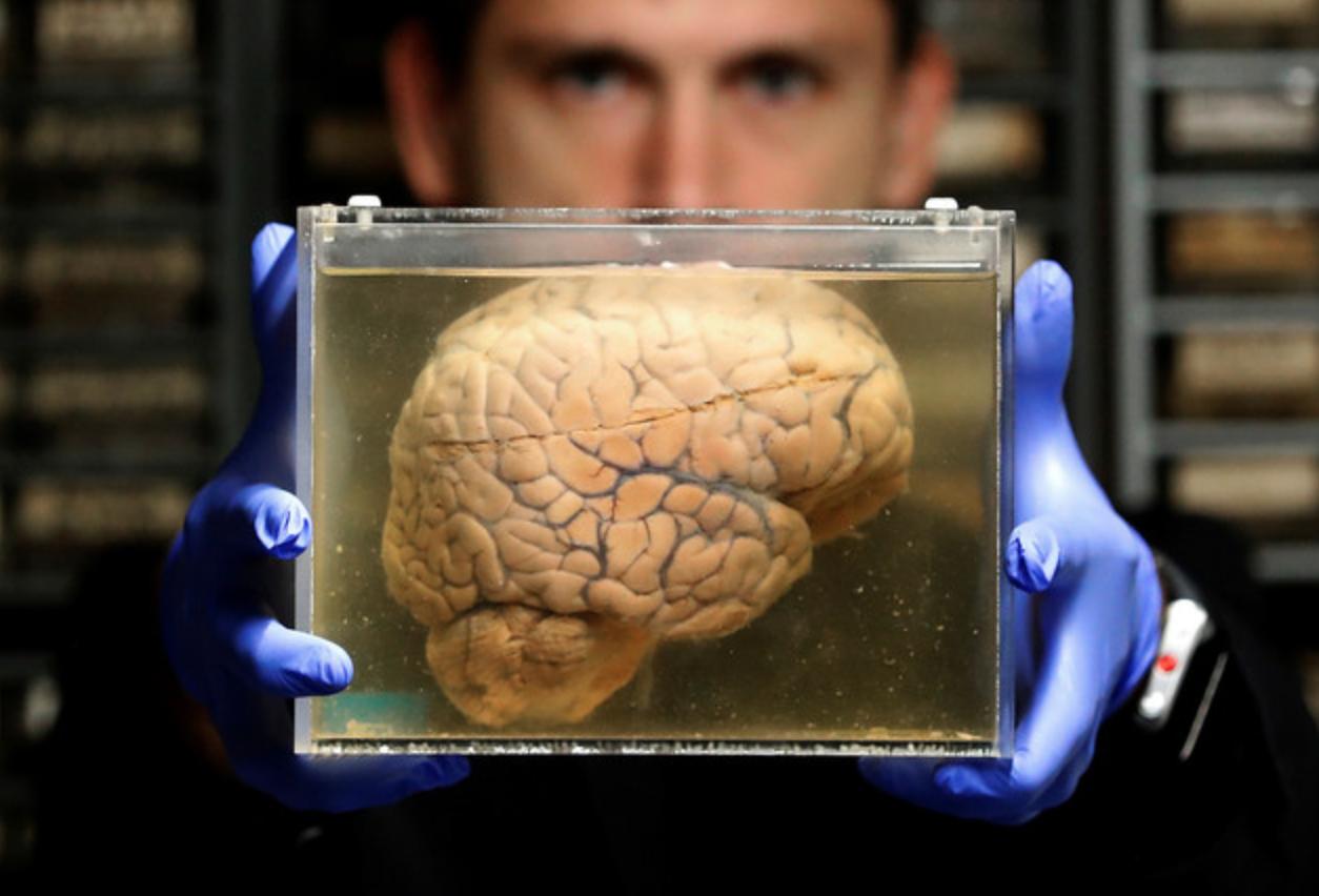 24 key biases that warp our sense of reality
