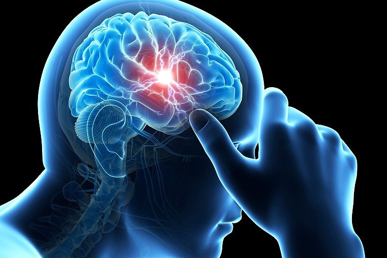 Concussion Rehabilitation -