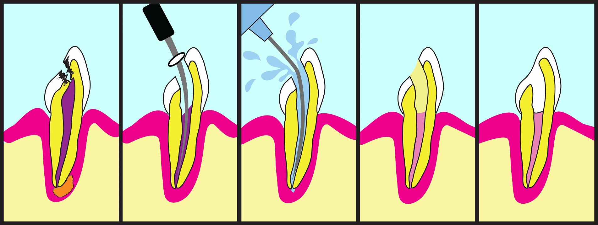 Root Canal Therapy - by Dental Above