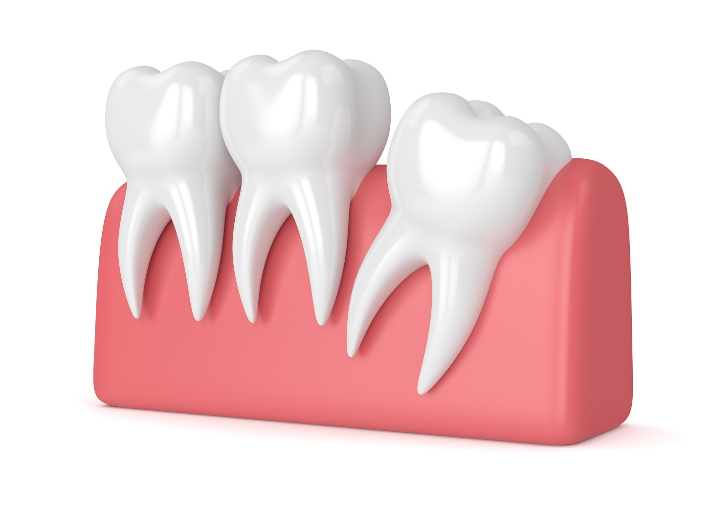 wisdom teeth extraction - by Dental Above