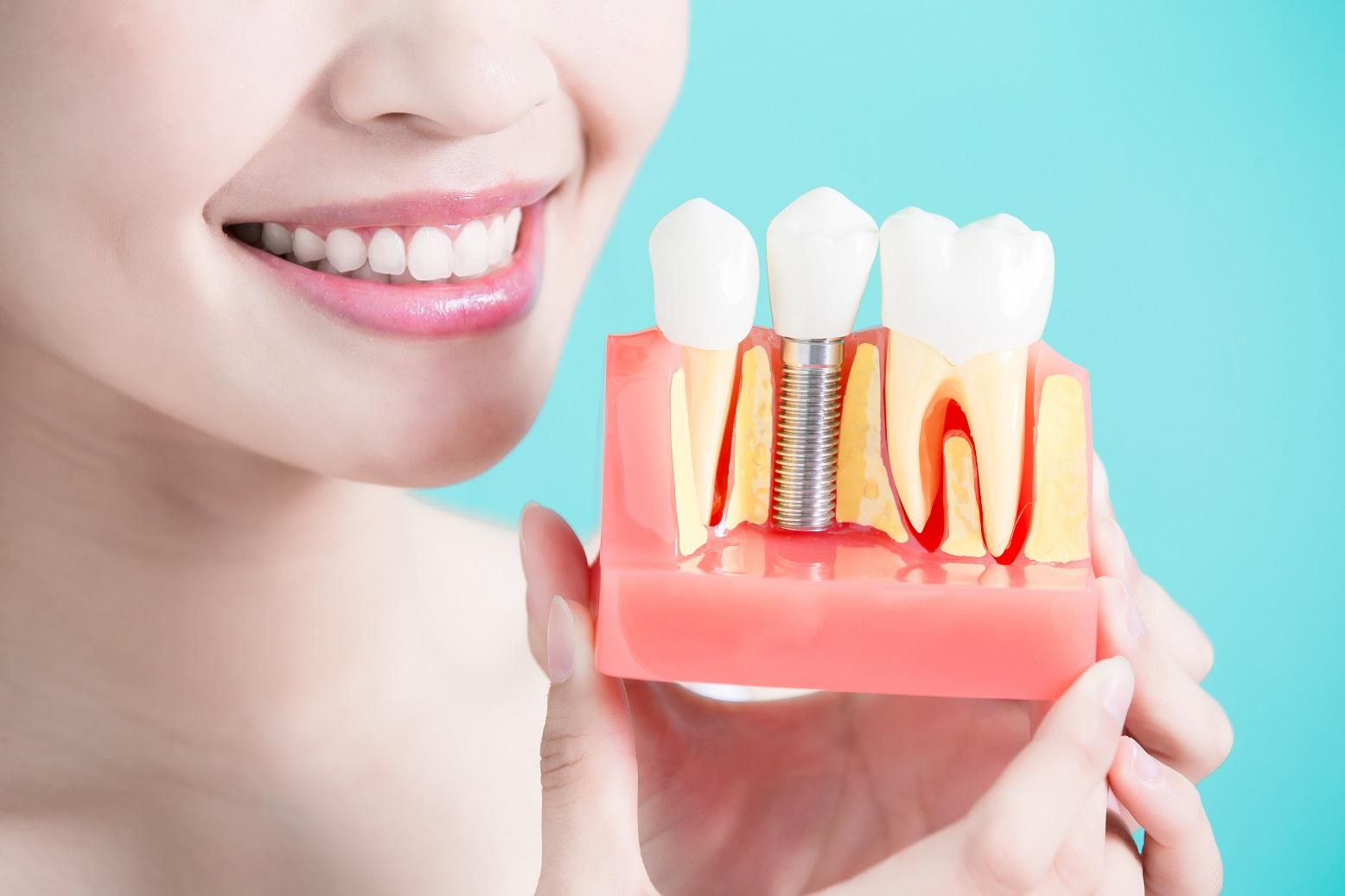 Dental implants - by Dental Above