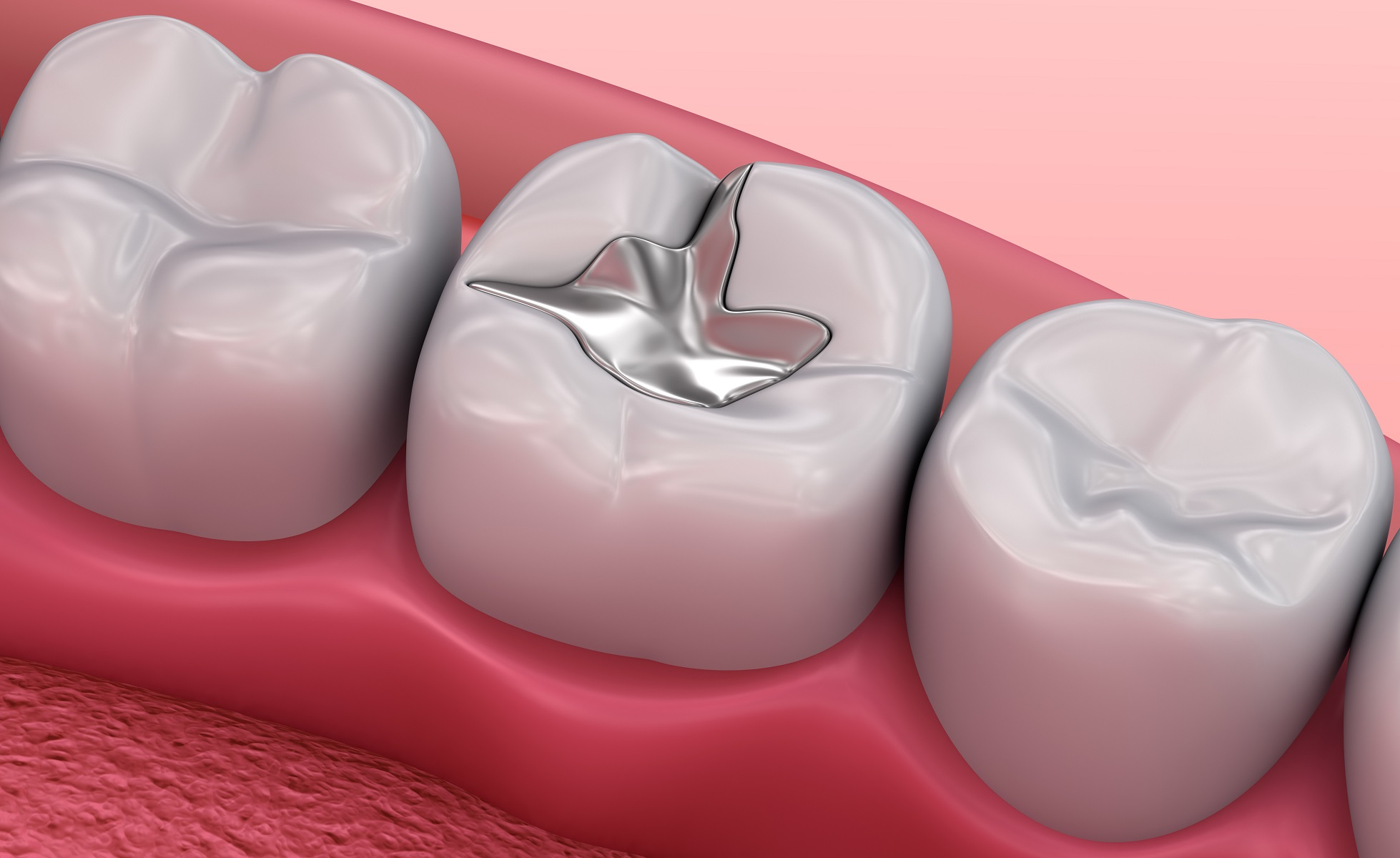 Restorations (Fillings) - by Dental Above