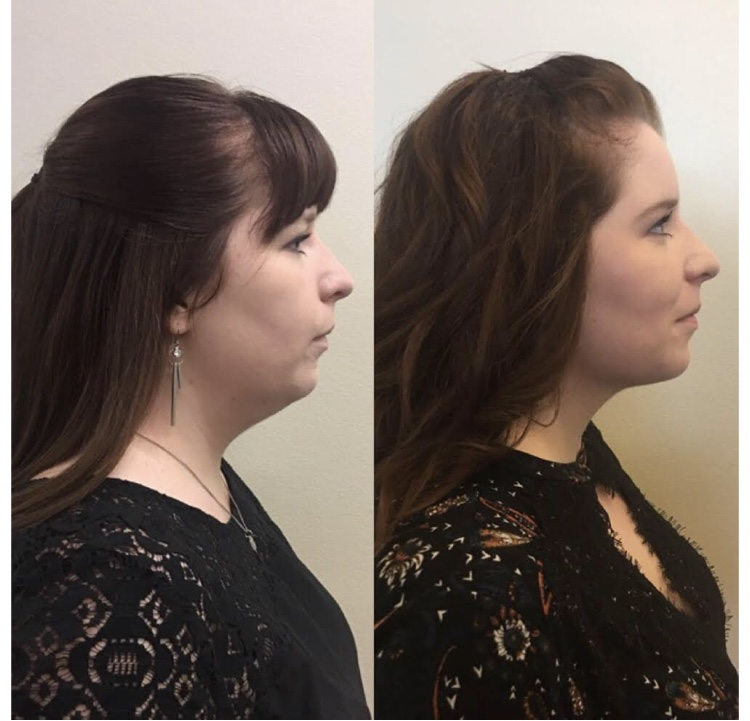 Kybella before and after!