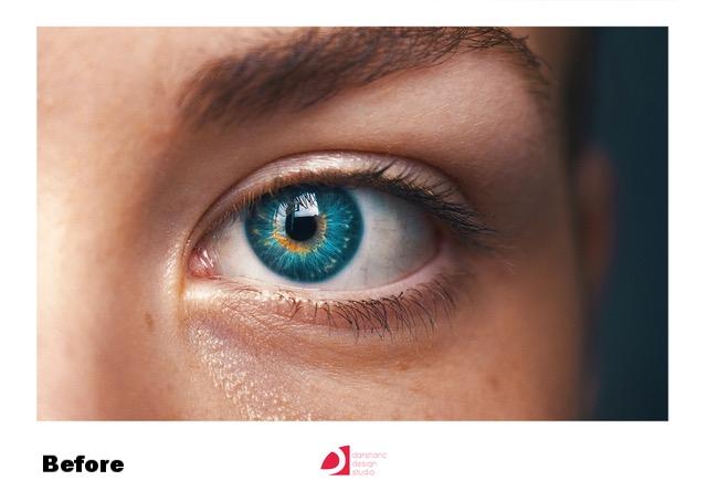 eye before.jpeg