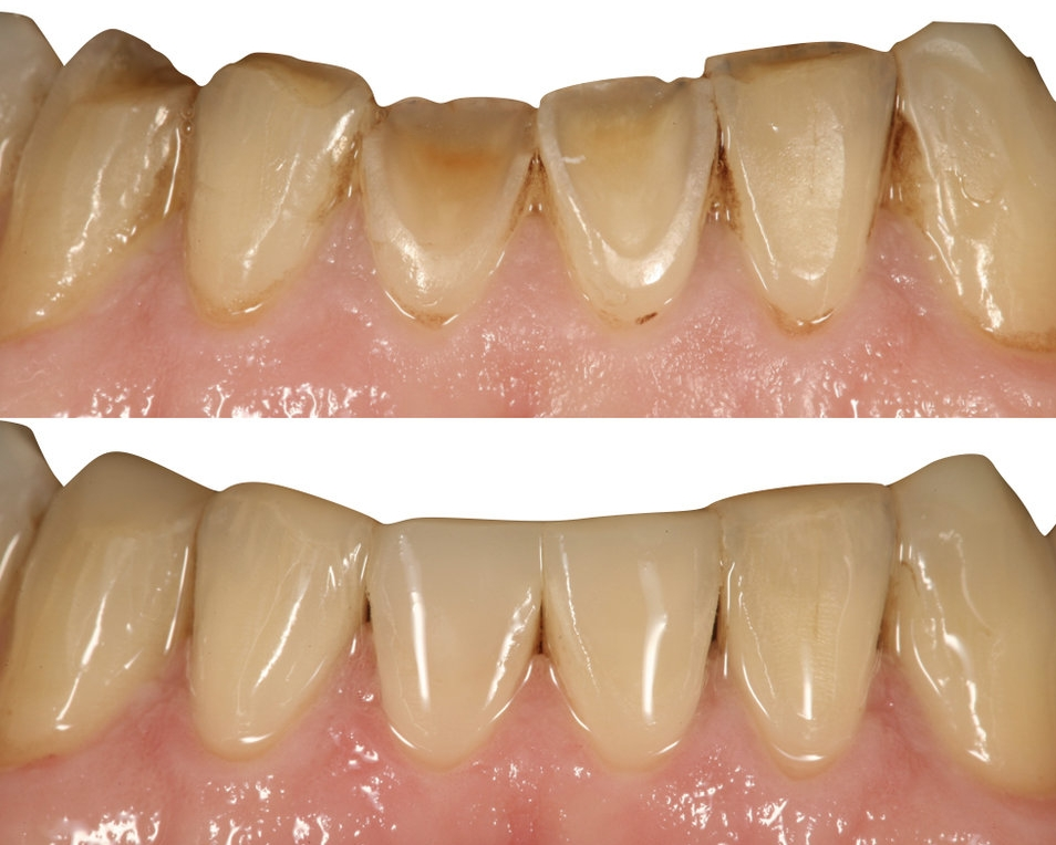 Before & After photographs showing toothwear management using direct composite  (Course Director, Ian Cline)