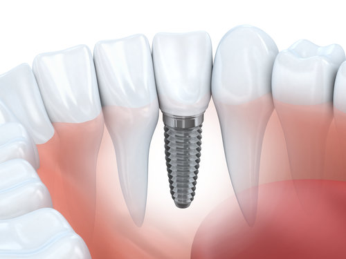 Dental implants are the ultimate solution for missing teeth.