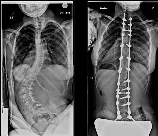 neuromuscular_scoliosis_before_after_x-rays.jpg