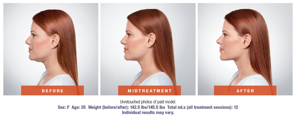 Kybella Before and After Woman.jpg