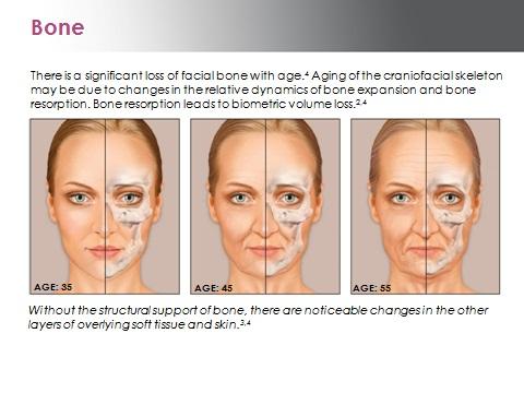 Galderma-image Aging Bone.png
