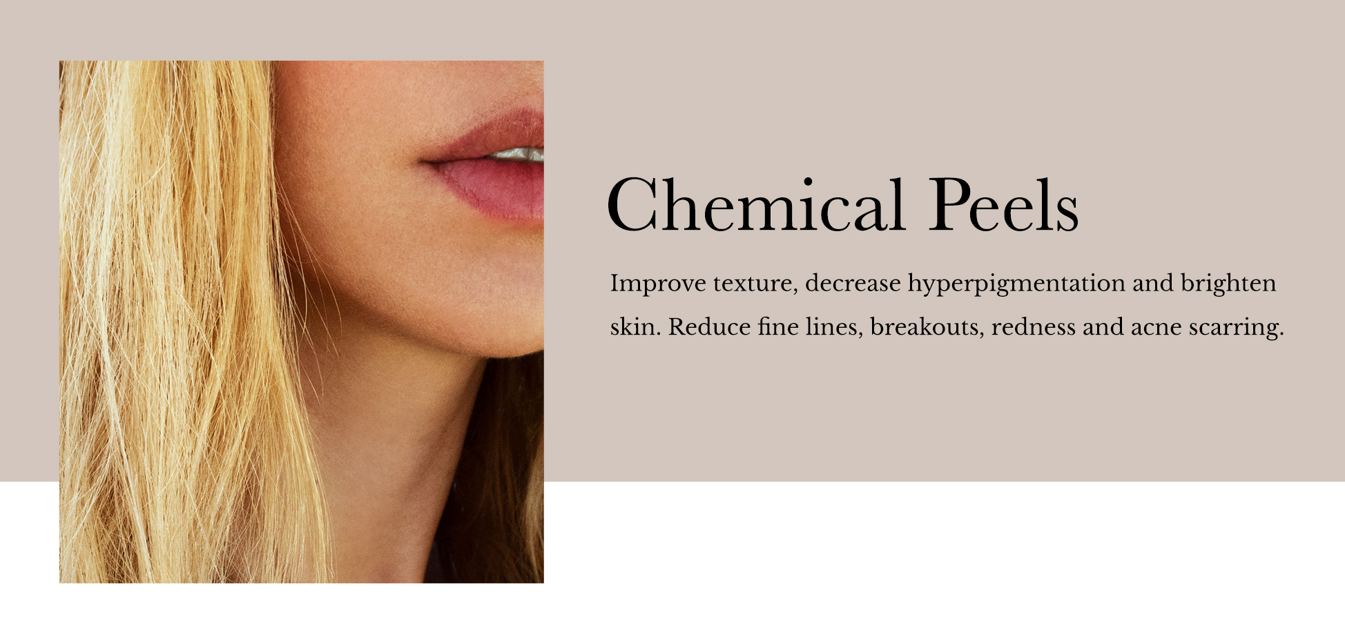 Chemical_Peels_Header.JPG