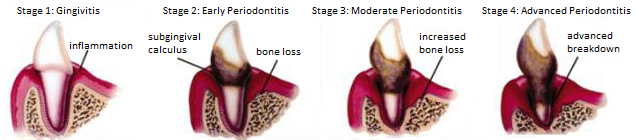POD-stages.png