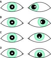 Eye Test.jpg