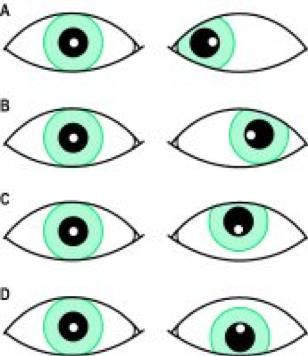 eyes, eyetest