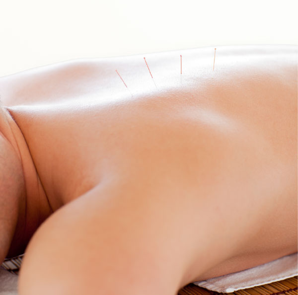 A lady having acupuncture treatment to relieve pain